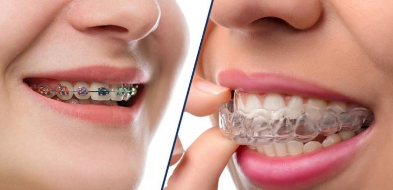 Chuyên gia nha khoa nói gì về niềng răng Invisalign?