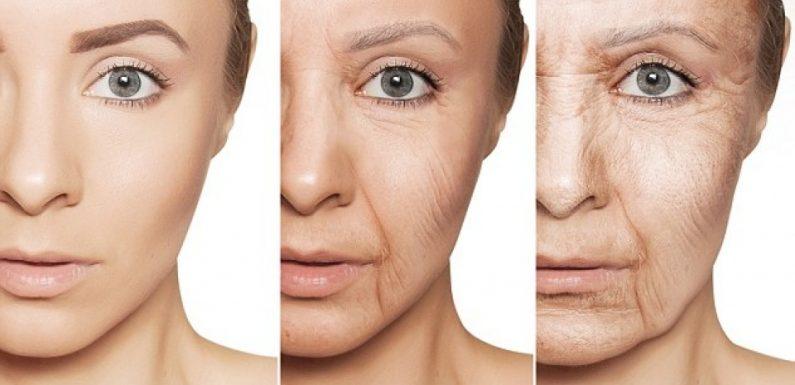 Có nên nâng cơ mặt không? Nâng cơ mặt có lợi hay hại?