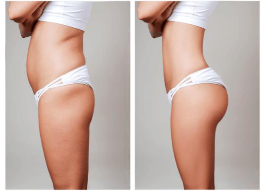 Có nên nâng mông bằng cấy mỡ tự thân hay không?