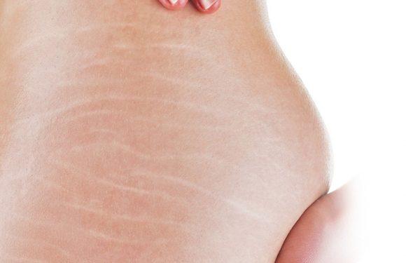 Cách làm mờ vết rạn da ở mông đơn giản cực kì hiệu quả