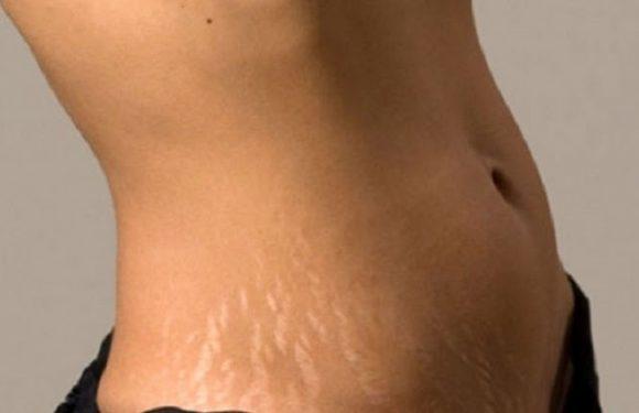 Một số phương pháp trị rạn lâu năm hiệu quả dành cho người rạn
