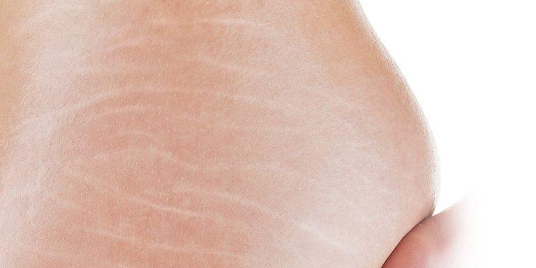 5 cách làm mờ vết rạn da lâu năm nhanh chóng hiệu quả nhất 2021