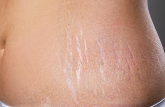 5 cách làm mờ rạn da sau sinh hiệu quả dành cho các mẹ bị rạn