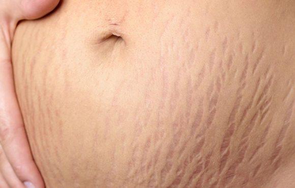 Cách trị rạn da sau sinh bằng dầu dừa hiệu quả danh cho các mẹ
